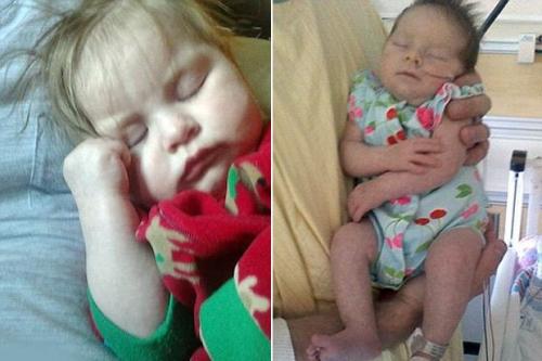 Bà mẹ mang thai đến tháng cuối thì bị sét đánh trúng người, bác sĩ lập tức mổ cứu con thì choáng váng khi nhìn hình hài đứa trẻ