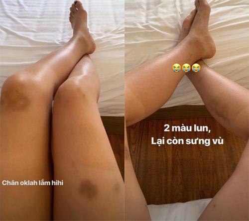 Fan lo lắng khi Hoa hậu Kỳ Duyên để lộ đôi chân bầm tím, sưng vù  - Ảnh 1.