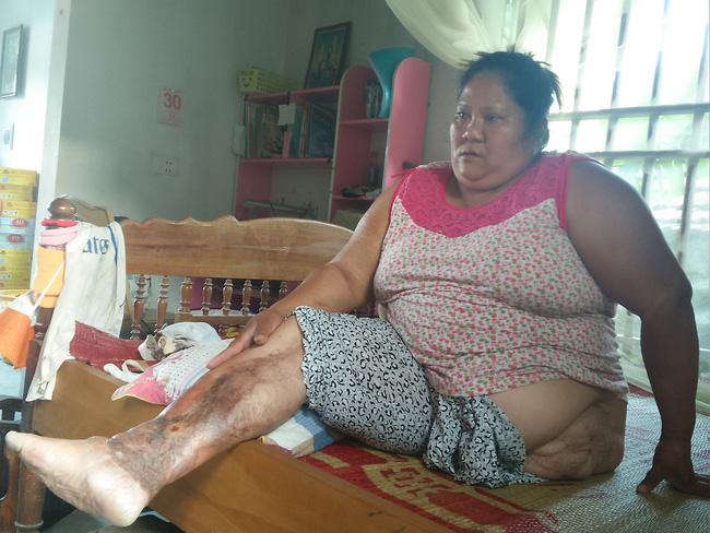 Gặp lại người mẹ đơn thân bị đứt lìa, dập nát hai chân sau vụ sập mỏ đá khiến 3 người chết, 7 người nguy kịch - Ảnh 1.