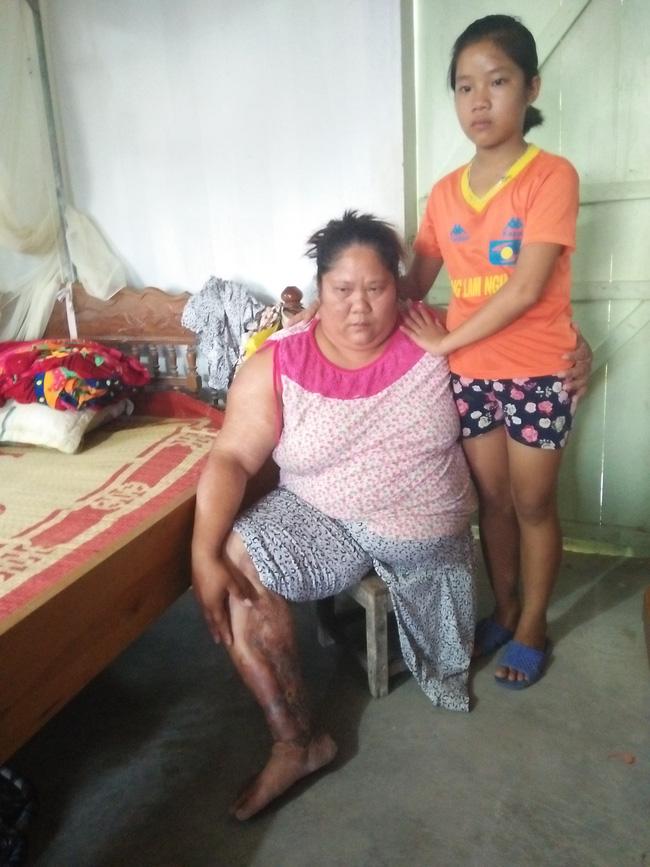 Gặp lại người mẹ đơn thân bị đứt lìa, dập nát hai chân sau vụ sập mỏ đá khiến 3 người chết, 7 người nguy kịch - Ảnh 4.