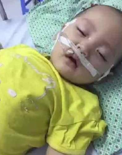 Biến chứng sau khi mắc tay chân miệng, bé 14 tháng dừng tập đi
