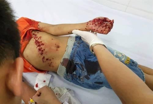 Đồ chơi phát nổ, bé trai 8 tuổi bị thương nặng
